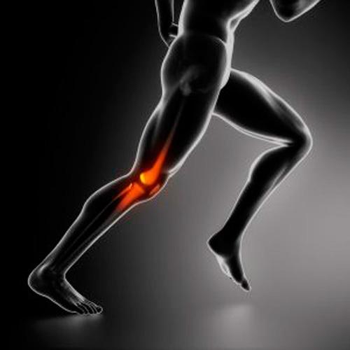 dolor rotuliano